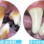Afbeelding van hoe tandplak en tandsteen eruit zien op het gebit van een hond